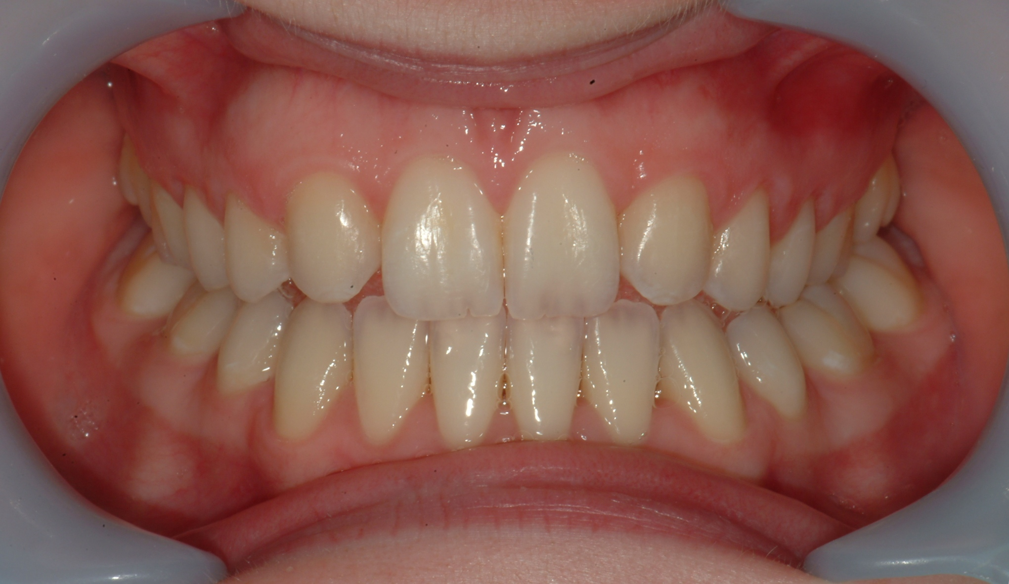 Missing Lateral Incisor The Dental And Orthodontic Centre